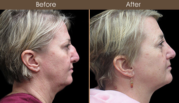 Rhinoplasty Surgery Before & After
