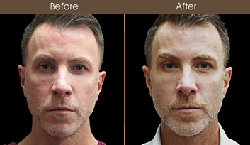 Rhinoplasty Surgery Results