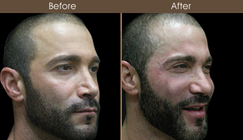 Nose Reshaping Surgery Before And After