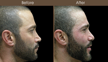 Nose Reshaping Surgery Before & After