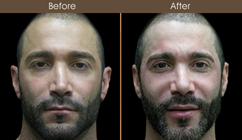 Before & After Nose Surgery