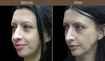 Rhinoplasty Treatment Before & After