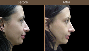 Rhinoplasty Treatment Results