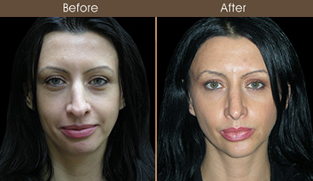 Rhinoplasty Treatment Before And After