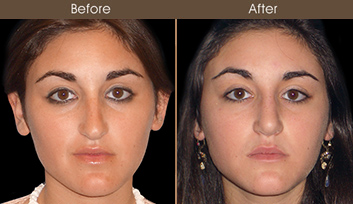Nose Reshaping Before & After