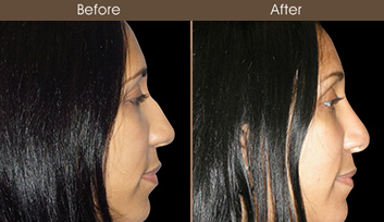 Before And After Nose Surgery In NYC