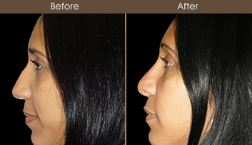 Before & After Nose Surgery In NYC