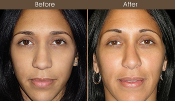 Before And After Nose Surgery In New York