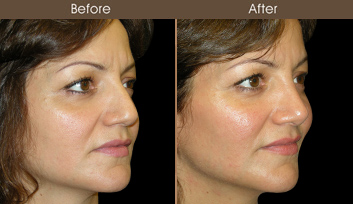 Before And After Rhinoplasty In NYC