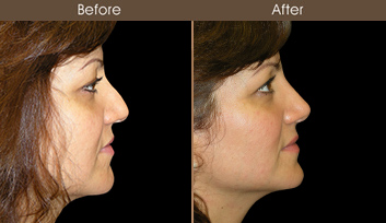 Before & After Rhinoplasty In NYC