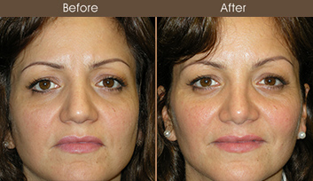 Before And After Rhinoplasty In New York