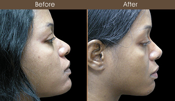Before & After Nose Reshaping Surgery