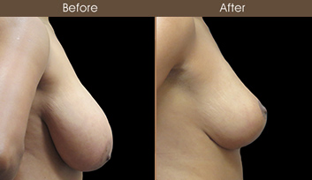 Before And After Breast Reduction Surgery In NYC