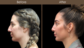 Before & After Nose Reshaping Surgery In NYC