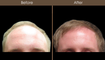 Hair Restoration Results