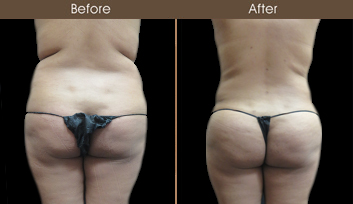 Before & After Liposuction Surgery In NY