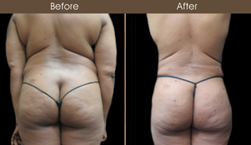 Before And After Lipo In NY