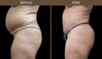 Before & After Lipo In NY
