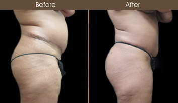 Before And After Lipo Surgery In NY