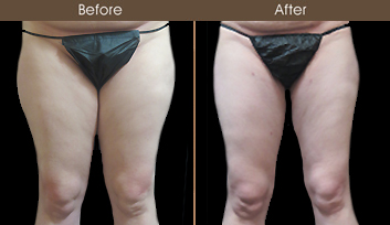 NYC Liposuction Surgery Before And After
