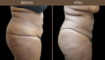 New York Liposuction Results
