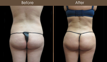 Before & After New York Liposuction