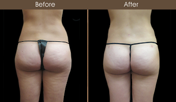 Before & After New York Liposuction Surgery