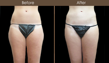 New York City Liposuction Before And After
