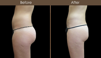 New York City Liposuction Before & After
