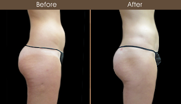 New York City Liposuction Results