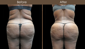 New York Liposuction Surgery Results