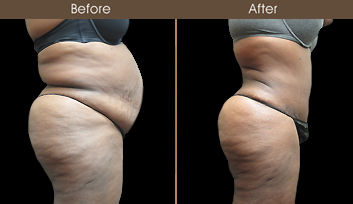 Before And After New York Liposuction Surgery