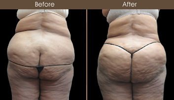 Before & After New York City Liposuction