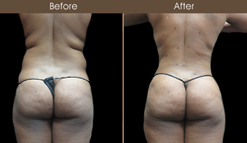 New York City Liposuction Surgery Before And After