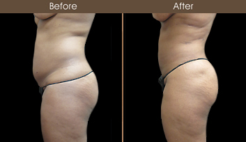 New York City Liposuction Surgery Results