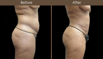 Before And After New York City Liposuction Surgery