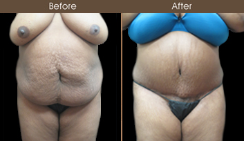 New York Abdominoplasty Surgery Before And After