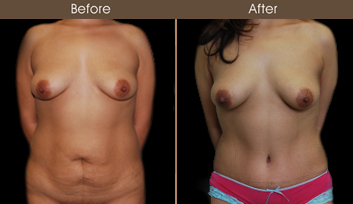 New York Abdominoplasty Surgery Before & After