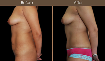 New York City Tummy Tuck Before And After