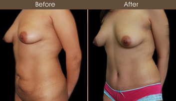 New York City Tummy Tuck Before & After