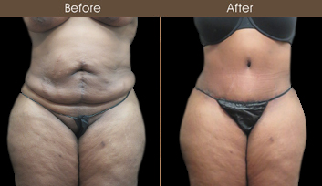 New York City Tummy Tuck Results