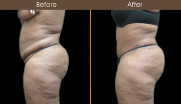 New York City Tummy Tuck Surgery Before And After