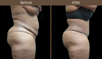 New York City Tummy Tuck Surgery Before & After