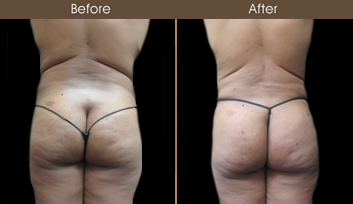 New York City Abdominoplasty Surgery Results