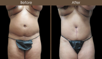 New York City Abdominoplasty Results