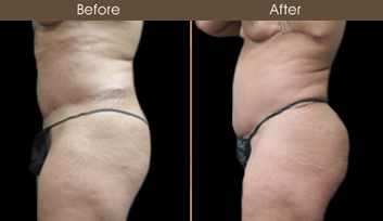 New York City Abdominoplasty Surgery Before And After