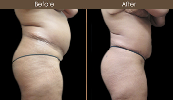New York City Abdominoplasty Surgery Before & After