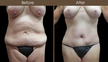 NY Tummy Tuck Before And After