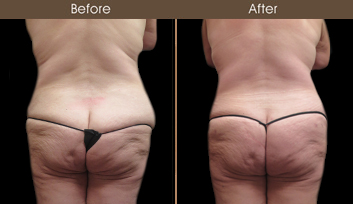NY Tummy Tuck Surgery Before And After
