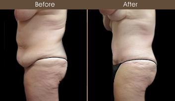 NY Tummy Tuck Before & After